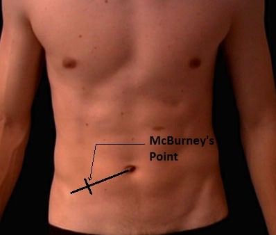 Picture of man's abdomen, x where McBurney's point is.